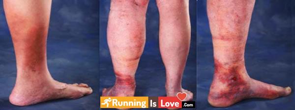 سنگینی پاها هنگام دویدن