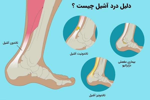 درد تاندون آشیل |همه چیز درباره درمان تاندون آشیل